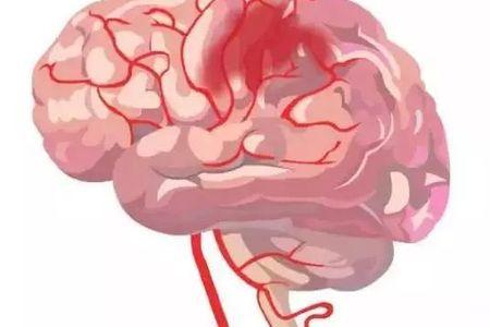 放射科医师借助医学专家和计算机科学家开发的人工智能算法改进了脑动脉瘤的诊断
