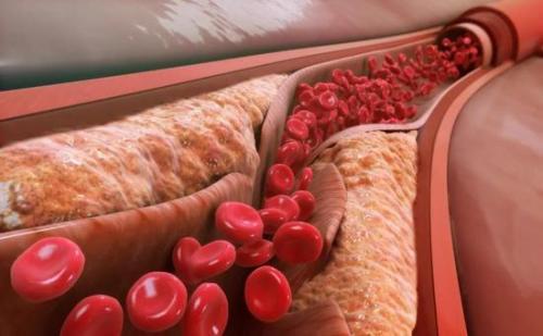 降低胆固醇的药物 用于预防动脉粥样硬化性心血管疾病