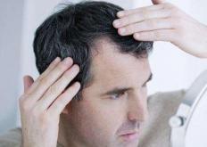 生活小知识:年轻人长白发的心理危害 日常养发护发小妙招