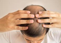 生活小知识:头发少要怎么保养 预防脱发十秘诀
