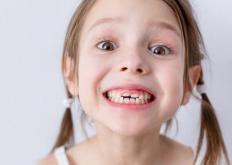 生活小知识:导致磨牙的因素 治疗磨牙要心理和药物治疗双管齐下