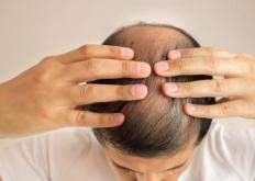 生活小知识:头发少学会科学地保养头发 预防脱发的秘诀