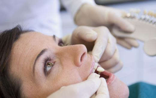生活小知识:洗牙问题大揭秘 全方位告诉你洗牙好与坏