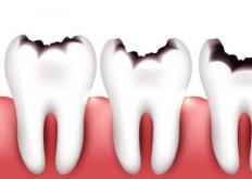 生活小知识:牙齿衰老的症状你知道么?